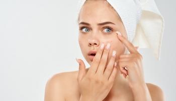 Problémová pleť: Vyskúšajte prírodnú kozmetiku